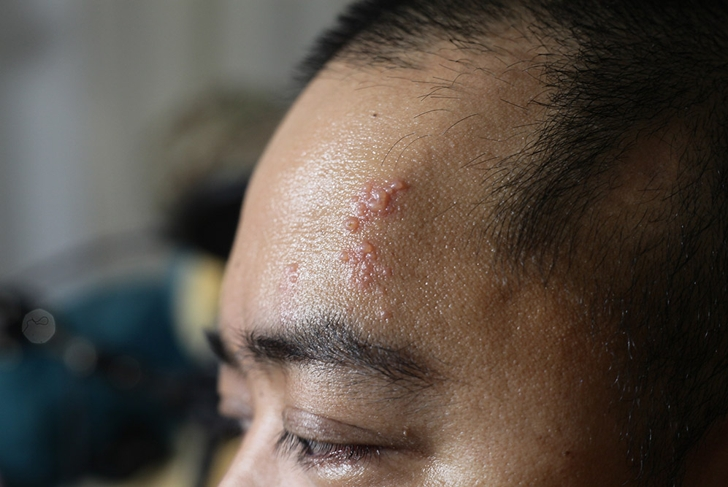 A picture of blisters on the face due to shingles.