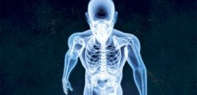 Osteoporosis and Men