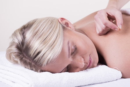 5 Things You Might Not Know About Acupuncture