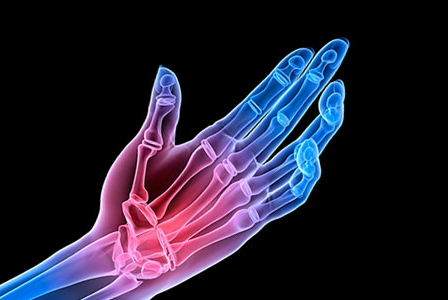 Common Arthritis Questions Answered