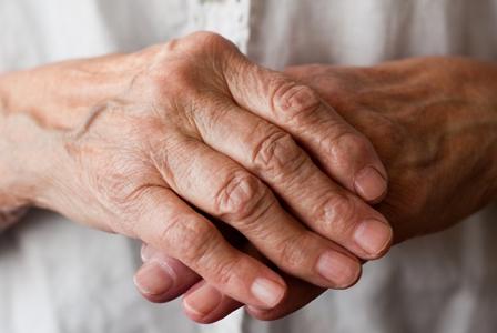 Lifestyle Factors May Influence Risk of Rheumatoid Arthritis