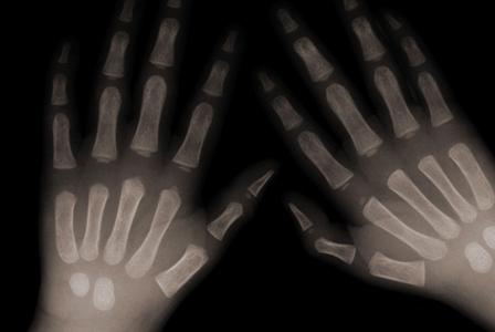 Bone Up on Bone Disease