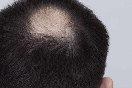 Why Are You Losing Hair?
