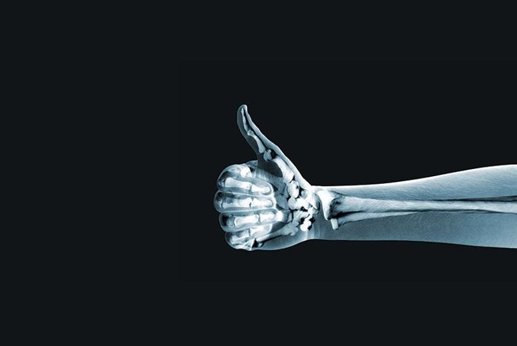 Fractured a Bone?