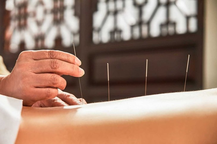 The doctor of traditional Chinese medicine acupuncture