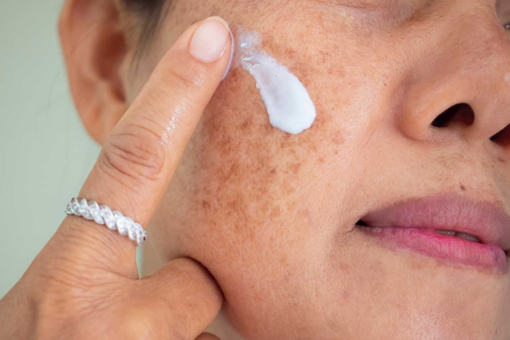 Asian woman are applying cream for facial treatment problem spot melasma pigmentation skincare on her face.
