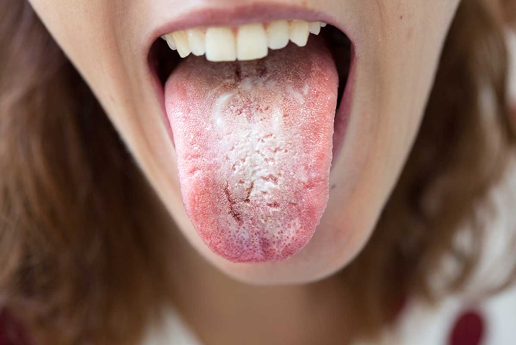 Woman with halitosis for candida albicans on tongue